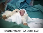 new born baby in operating room. | Shutterstock . vector #652081162