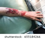 wounded in the arm the patient... | Shutterstock . vector #655184266