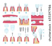 set of dental crowns and... | Shutterstock .eps vector #655397986