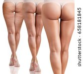 female buttocks before and... | Shutterstock . vector #658181845
