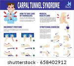 carpal tunnel syndrome... | Shutterstock .eps vector #658402912