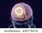 destruction of brain tumor  3d... | Shutterstock . vector #659776276
