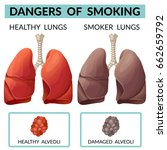 dangers of smoking. lungs of a...   Shutterstock .eps vector #662659792