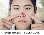 the herpes simplex on asian
