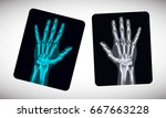 radiography. picture of human... | Shutterstock .eps vector #667663228