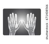x ray of human hand bones in... | Shutterstock .eps vector #671408566