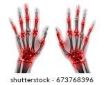 arthritis multiple joint of... | Shutterstock . vector #673768396