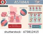 asthma symptoms  risk factors... | Shutterstock .eps vector #673812415