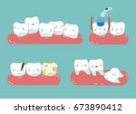 check up decayed tooth   wisdom ... | Shutterstock .eps vector #673890412