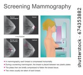 mammography is the process of... | Shutterstock .eps vector #674353882
