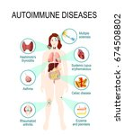 autoimmune diseases. tissues of ... | Shutterstock .eps vector #674508802