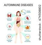 autoimmune diseases. tissues of ... | Shutterstock .eps vector #674508802