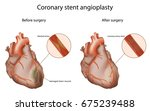 coronary stent angioplasty ... | Shutterstock .eps vector #675239488