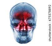 sinusitis . film x ray of human ... | Shutterstock . vector #675378892