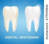 tooth veneer  teeth whitening ... | Shutterstock .eps vector #679549846