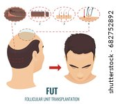 male hair loss treatment with... | Shutterstock . vector #682752892