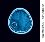 Small photo of MRI of the brain, showing brain abscess (or cerebral abscess)
