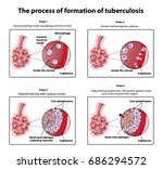 the process of tuberculosis... | Shutterstock . vector #686294572