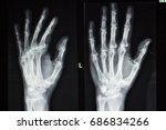 hand fingers joint xray test... | Shutterstock . vector #686834266