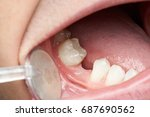 missing tooth space in mouth... | Shutterstock . vector #687690562