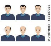 hair loss stages and types of... | Shutterstock .eps vector #688157398