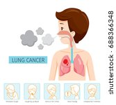man with lung cancer diagram... | Shutterstock .eps vector #688366348