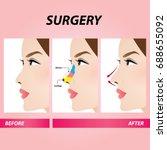 nose plastic surgery  ... | Shutterstock .eps vector #688655092