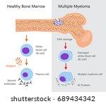 multiple myeloma diagram.... | Shutterstock .eps vector #689434342