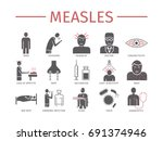 measles. symptoms  treatment.... | Shutterstock .eps vector #691374946