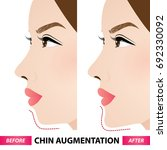 chin augmentation before and... | Shutterstock .eps vector #692330092