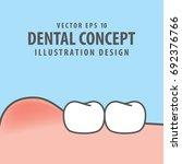 swollen gums with teeth... | Shutterstock .eps vector #692376766