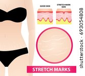 woman stretch marks skin vector ... | Shutterstock .eps vector #693054808