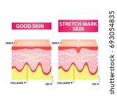 woman stretch mark skin vector... | Shutterstock .eps vector #693054835