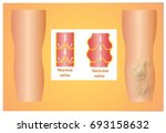 varicose veins on a female... | Shutterstock . vector #693158632