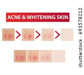 acne skin to clear steps and... | Shutterstock .eps vector #693578212