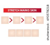 stretch marks skin to clear... | Shutterstock .eps vector #693578218