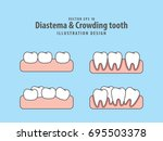 diastema   crowding tooth...   Shutterstock .eps vector #695503378