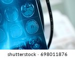 mr image in frontal section of... | Shutterstock . vector #698011876