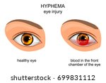vector illustration of eye... | Shutterstock .eps vector #699831112