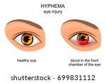 vector illustration of eye... | Shutterstock .eps vector #699831112