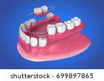 Removable Partial Denture....