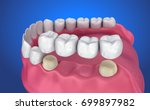 tooth supported fixed bridge....   Shutterstock . vector #699897982