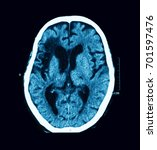 Small photo of CT scan of the brain, case of old CVA (Cerebrovascular Accident), Atrial Fibrillation (AF) and Dilated cardiomyopathy (DCM)