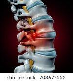 human herniated disk concept... | Shutterstock . vector #703672552