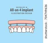 all on 4 implant illustration...