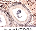 Small photo of Histology of human testis and epididymis tissue, show epithelium tissue, connective tissue and spermatogenesis cell with microscope view