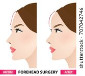 forehead surgery before and... | Shutterstock .eps vector #707042746