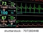 vital sign ekg monitor. | Shutterstock . vector #707283448