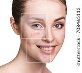 Small photo of Woman's face before and after treatment