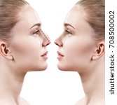 Small photo of Female nose before and after cosmetic surgery.